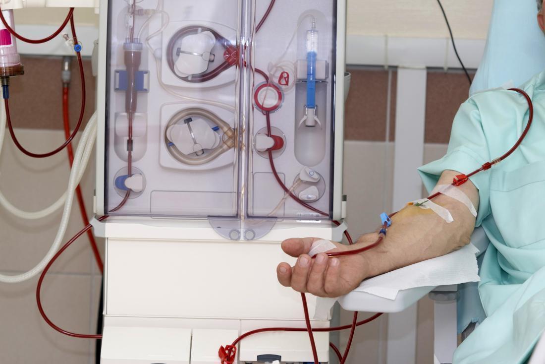 افزایش دستگاه های دیالیز بیمارستان فسا