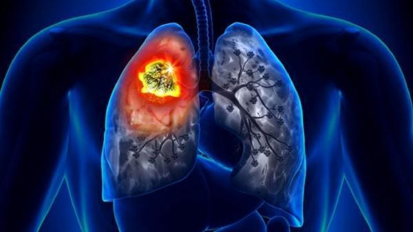نشانه های ابتلا به سرطان ریه را بشناسید